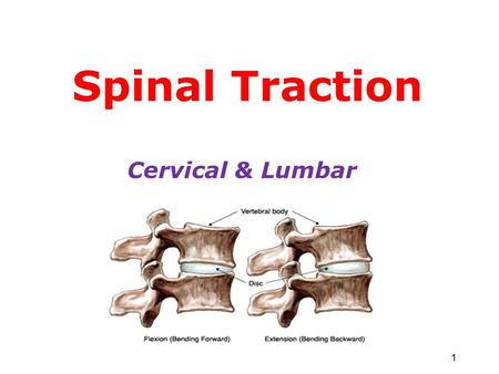 Spinal Traction Cervical & Lumbar 1. Traction Traction is the process of drawing or pulling the spinal column to apply a longitudinal force to the spine.