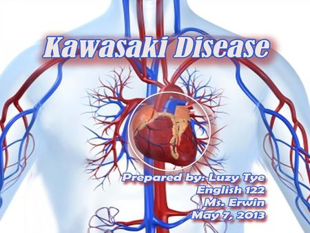 What is Kawasaki Disease? Kawasaki Disease (KD) also known as Kawasaki Syndrome. An unusual and serious illness of young children. It is an autoimmune.