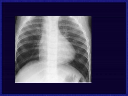 Tetrology of Fallot Cyanosis Decreased Pulmonary Vascularity Normal Cardiac size 8 percent of Congenital heart disease 4 Components.