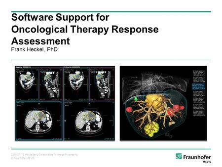 © Fraunhofer MEVIS 2015-07-13, Heidelberg Collaboratory for Image Processing Frank Heckel, PhD Software Support for Oncological Therapy Response Assessment.