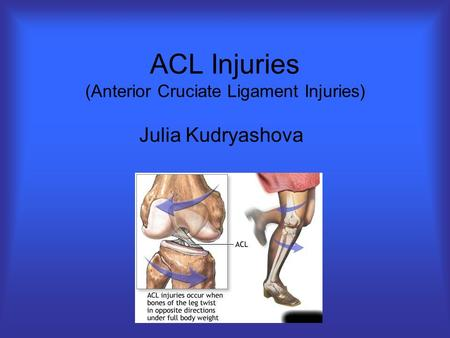 ACL Injuries (Anterior Cruciate Ligament Injuries) Julia Kudryashova.