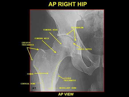 AP RIGHT HIP AP VIEW RT. ACETABULUM FEMORAL HEAD FEMORAL NECK