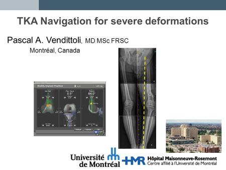 navigation v conventional techniques for orthopaedic surgery Can experienced surgeon learn a new technique with navigation  meta- analysis of navigation vs conventional total knee arthroplasty.