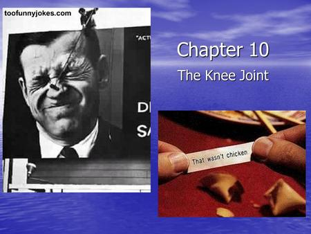 Chapter 10 The Knee Joint. Femur Head Patellar Surface Lateral condyle Medial condyle Adductor Tubercle Linea Aspera Gluteal Tuberosity Quadrate Tubercle.