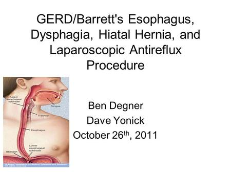 GERD/Barretts <strong>Esophagus</strong>, Dysphagia, Hiatal Hernia, <strong>and</strong> Laparoscopic Antireflux Procedure Ben Degner Dave Yonick October 26 th, 2011.