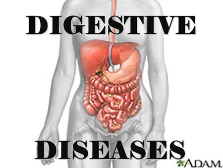 DISEASES DIGESTIVE. GERD GERD - Gastro-esophageal reflux disease Not actually a disease but a syndrome of unknown cause where there is a reflux of gastric.