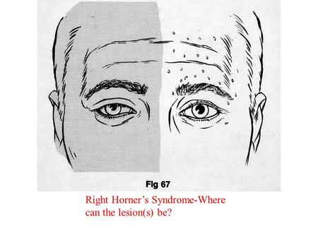 Right Horner's Syndrome-Where can the lesion(s) be?