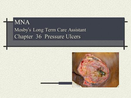 MNA Mosby's Long Term Care Assistant Chapter 36 Pressure Ulcers