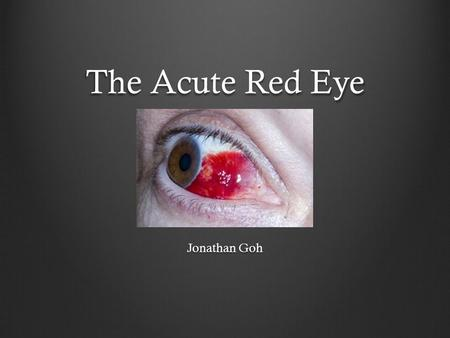 The Acute Red Eye Jonathan Goh. Background One of the most common eye complaints May present to GP, ED, or Optometrist Varied aetiologies (a lot!) Commonly.