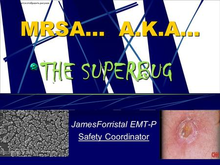 MRSA… A.K.A… JamesForristal EMT-P Safety Coordinator THE SUPERBUG.