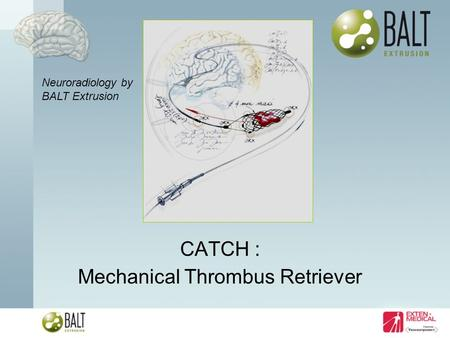 CATCH : Mechanical Thrombus Retriever