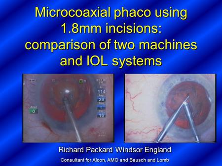 Microcoaxial phaco using 1.8mm incisions: comparison of two machines and IOL systems Richard Packard Windsor England Consultant for Alcon, AMO and Bausch.