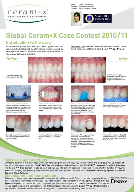 Introduction to the case Before After Materials and methods Discussion and conclusions A 23-year-old young lady with good oral hygiene and low caries risk.