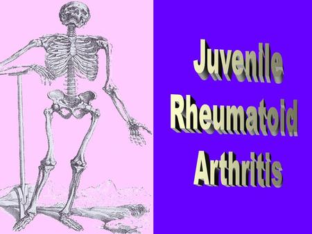 JRA is the most frequent chronic arthritis of children. The evidence of its was discovered from remained skeleton from 1000 years ago. It was prescribed.