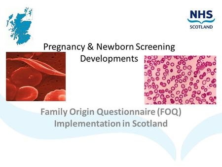 Pregnancy & Newborn Screening Developments Family Origin Questionnaire (FOQ) Implementation in Scotland.