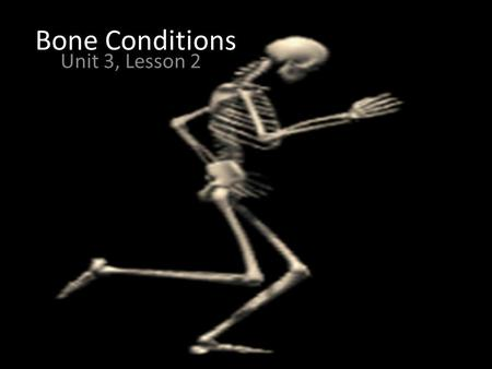 "Bone Conditions Unit 3, Lesson 2.  Osteomalacia ◦ Literally ""soft bones."" ◦ Includes many disorders in which bone is produced but not fully mineralized."
