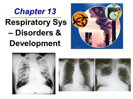 Chapter 13 Respiratory Sys – Disorders & Development.