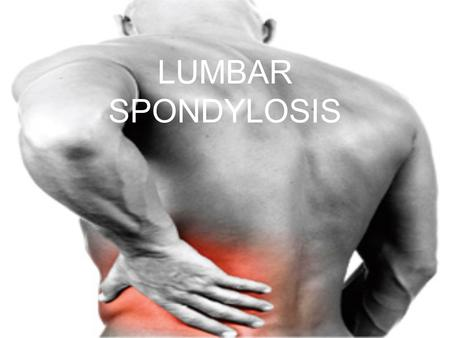 LUMBAR SPONDYLOSIS. Definition Lumbar spondylosis is a medical condition in which chronic pain is experienced by the patient in the lower back This is.