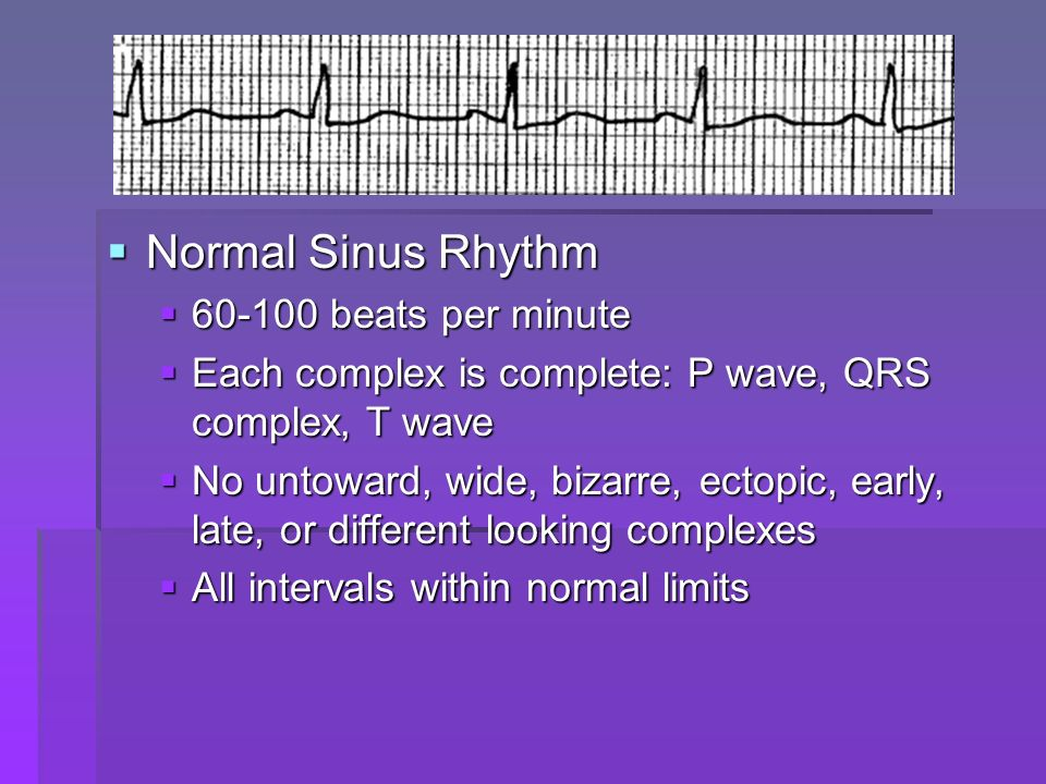 Sinus Arrhythmia Sinus Arrhythmia 60-100 beats per minute 60-100 beats per minute 100-160 beats per minute 100-160 beats per minute Each complex is complete: P wave, QRS complex, T wave Each complex is complete: P wave, QRS complex, T wave No untoward, wide, bizarre, ectopic, early, late, or different looking complexes No untoward, wide, bizarre, ectopic, early, late, or different looking complexes All intervals except the R-R are within normal limits All intervals except the R-R are within normal limits