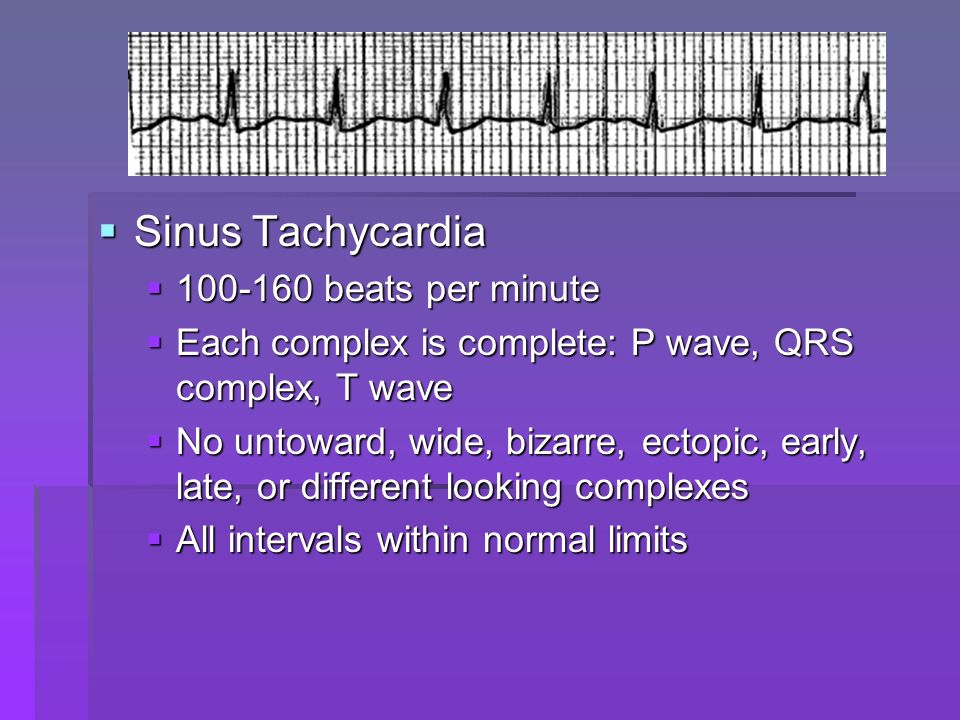 Sinus Bradycardia Sinus Bradycardia Rate less than 60 beats per minute Rate less than 60 beats per minute 100-160 beats per minute 100-160 beats per minute Each complex is complete: P wave, QRS complex, T wave Each complex is complete: P wave, QRS complex, T wave No untoward, wide, bizarre, ectopic, early, late, or different looking complexes No untoward, wide, bizarre, ectopic, early, late, or different looking complexes All intervals within normal limits All intervals within normal limits