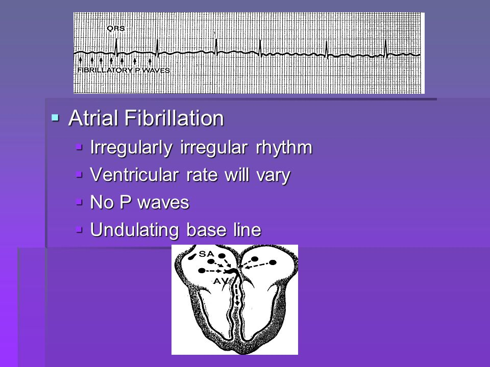 Atrial Flutter Atrial Flutter P waves take on a saw-toothed appearance, become flutter f waves P waves take on a saw-toothed appearance, become flutter f waves R waves may appear regular R waves may appear regular Atrial rate is 250-350/ minute Atrial rate is 250-350/ minute Several flutter waves for each R wave Several flutter waves for each R wave