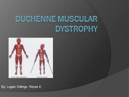 By: Logan Gillings, Reyes E. Cause Of Disease  Is a genetic disorder that causes progressive muscle weakness as individual muscle cells die.  An absence.