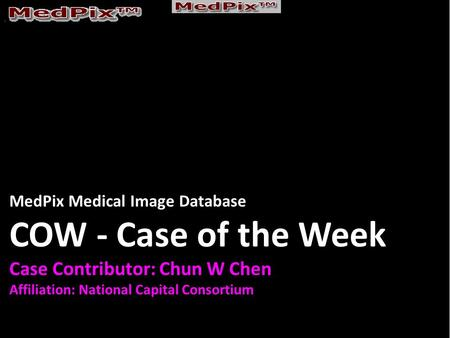 MedPix Medical Image Database COW - Case of the Week Case Contributor: Chun W Chen Affiliation: National Capital Consortium.