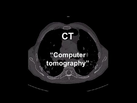 "CT ""Computer tomography"". Contrast mechanisms in X-ray imaging: X-ray absorption X-ray absorption mechanisms: 1. Photoelectric effect 2. Compton scatter."