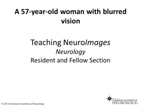 Teaching NeuroImages Neurology Resident and Fellow Section A 57-year-old woman with blurred vision © 2014 American Academy of Neurology.
