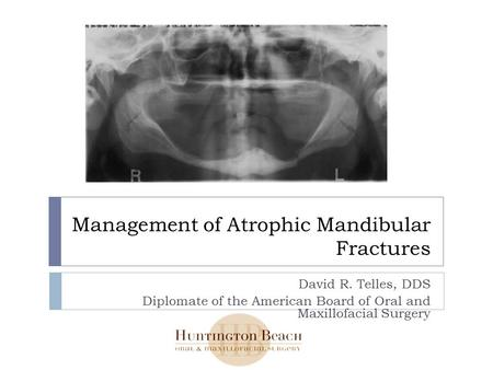 Management of Atrophic Mandibular Fractures David R. Telles, DDS Diplomate of the American Board of Oral and Maxillofacial Surgery.