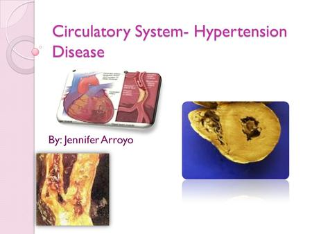 Circulatory System- Hypertension Disease By: Jennifer Arroyo.