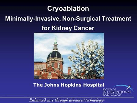 Cryoablation Minimally-Invasive, Non-Surgical Treatment for Kidney Cancer The Johns Hopkins Hospital.