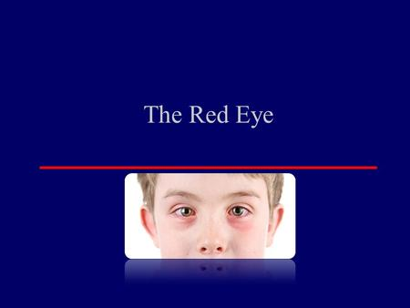 The Red Eye. Introduction Relevance –Red Eye Frequent presentation to GP Must be able to differentiate between serious vision threatening conditions and.