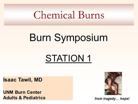Chemical Burns Isaac Tawil, MD UNM Burn Center Adults & Pediatrics from tragedy… hope! Burn Symposium STATION 1.