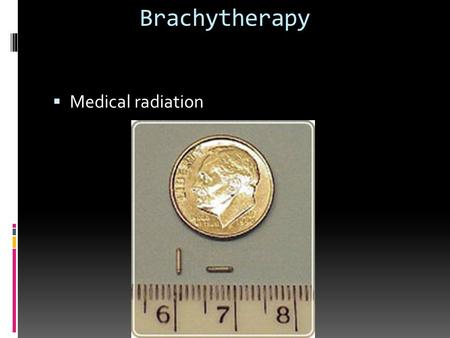 Brachytherapy  Medical radiation. Definition  a form of radiotherapy in which sealed sources of radioactive material are inserted temporarily into body.