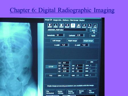 Chapter 6: Digital Radiographic Imaging. Digital Acquisition Methods 1. Digitize radiographs with a film digitizer.
