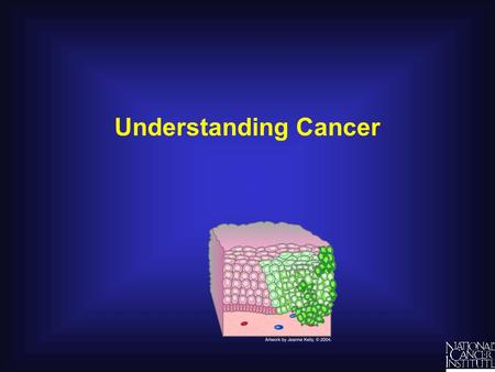 Understanding Cancer. What Is Cancer? Different Kinds of Cancer Lung Breast (women) Colon Bladder Prostate (men) Some common sarcomas: Fat Bone Muscle.