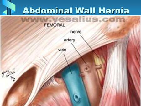 Abdominal Wall Hernia. DefinitionDefinition –External –Interparietal –Internal –Reducible –Non-reducible ( incarcerated) –Strangulated.