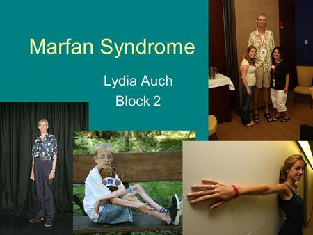 Marfan Syndrome Lydia Auch Block 2. History of Marfan's Syndrome The disorder was first logged as a medical condition called arachnodacryly in 1896 by.