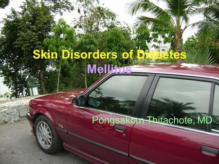 Skin Disorders of Diabetes Mellitus Pongsakorn Thitachote, MD.