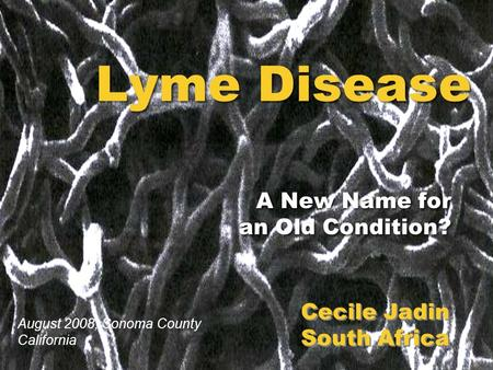 Lyme Disease A New Name for an Old Condition? A New Name for an Old Condition? Cecile Jadin South Africa Cecile Jadin South Africa August 2008, Sonoma.