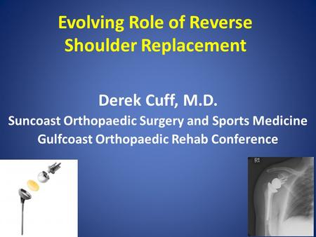 Evolving Role of Reverse Shoulder Replacement Derek Cuff, M.D. Suncoast Orthopaedic Surgery and Sports Medicine Gulfcoast Orthopaedic Rehab Conference.