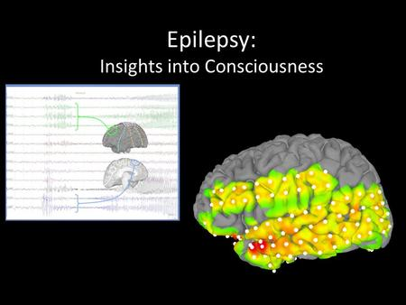 "Epilepsy: Insights into Consciousness. Obligatory Historical Quote: ""Men ought to know that from the brain, and from the brain only, arise our pleasures,"