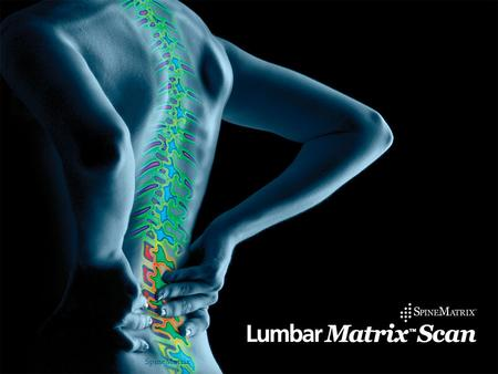 1SpineMatrix. Product 2 SMI has developed the Lumbar Matrix System A unique spinal physiology imaging scan used to diagnose disc, facet and chronic LBP.