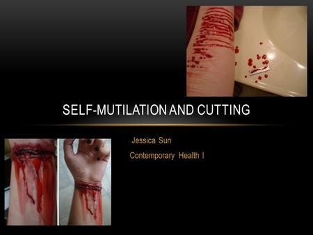 Jessica Sun Contemporary Health I SELF-MUTILATION AND CUTTING.