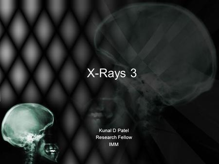 X-Rays 3 Kunal D Patel Research Fellow IMM. The 12-Steps 1: Name 2: Date 3: Old films 4: What type of view(s) 5: Penetration 6: Inspiration 7: Rotation.