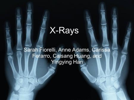 X-Rays Sarah Fiorelli, Anne Adams, Carissa Ferarro, Caisang Huang, and Yingying Han X-Rays.
