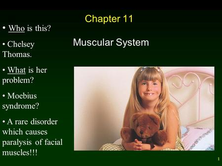 1 Chapter 11 Muscular System Who is this? Chelsey Thomas. What is her problem? Moebius syndrome? A rare disorder which causes paralysis of facial muscles!!!