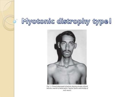What is myotonic dystrophy? Myotonic dystrophy is part of a group of inherited disorders called muscular dystrophies. It is the most common form of muscular.