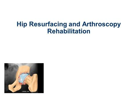 Hip Resurfacing and Arthroscopy Rehabilitation. Role of the Physiotherapist Pre-operative guidance and information Guide rehabilitation Motivation Support.